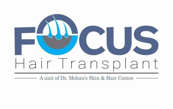 PRP Treatment & Hair Transplant in Jalandhar, Punjab - Focus Hair Transplant Centre