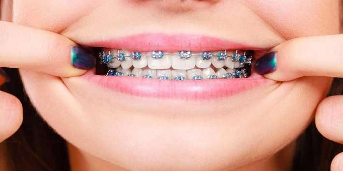 What are the major reasons to see an orthodontist?